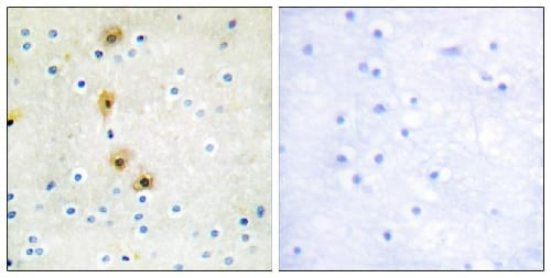 Immunohistochemistry (Formalin/PFA-fixed paraffin-embedded sections) - Anti-AKT1 antibody (ab59380)