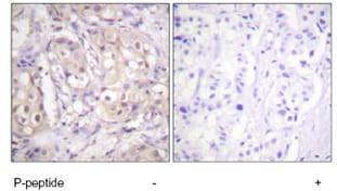 Immunohistochemistry (Formalin/PFA-fixed paraffin-embedded sections) - Anti-B Raf (phospho T598) antibody (ab59406)