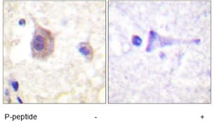 Immunohistochemistry (Formalin/PFA-fixed paraffin-embedded sections) - Anti-PKC mu/PKD (phospho Y463) antibody (ab59415)