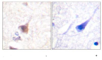Immunohistochemistry (Formalin/PFA-fixed paraffin-embedded sections) - Anti-CAMKIV (phospho T196 + T200) antibody (ab59424)
