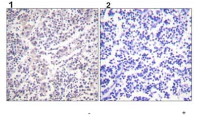 Immunohistochemistry (Formalin/PFA-fixed paraffin-embedded sections) - Anti-Caspase-3 (phospho S150) antibody (ab59425)