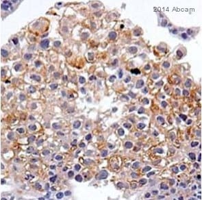 Immunohistochemistry (Formalin/PFA-fixed paraffin-embedded sections) - Anti-CD82 antibody [TS82b] (ab59509)