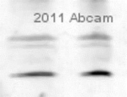 Western blot - Anti-Peroxiredoxin 2/PRP antibody (ab59539)