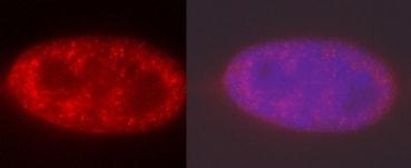 免疫细胞化学/免疫荧光-抗组蛋白H3(双甲基K4,三甲基K4)抗体[mAbcam 6000]-芯片级(ab6000)