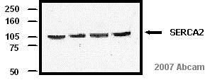 Western blot - Goat F(ab')2 Anti-Mouse IgG+IgM+IgA - H&L (HRP), pre-adsorbed (ab6006)