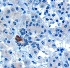 Immunohistochemistry (Formalin/PFA-fixed paraffin-embedded sections) - Anti-PAR6 antibody (ab6022)