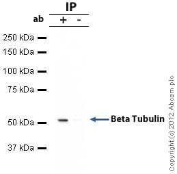 Immunoprecipitation - Anti-beta Tubulin antibody - Loading Control (ab6046)