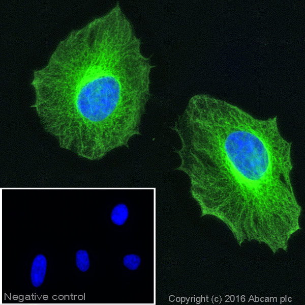 Immunocytochemistry/ Immunofluorescence - Anti-beta Tubulin antibody - Loading Control (ab6046)