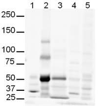Western blot - Anti-Gli3 antibody (ab6050)