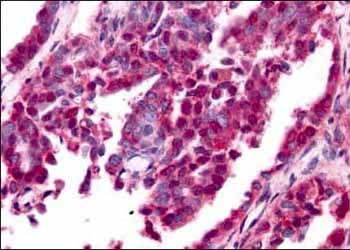 Immunohistochemistry (Formalin/PFA-fixed paraffin-embedded sections) - Anti-Egr1 antibody (ab6054)