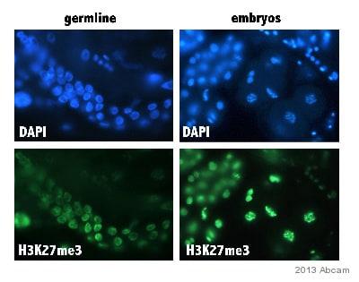 Immunocytochemistry/ Immunofluorescence - Anti-Histone H3 (di methyl K27, tri methyl K27) antibody [mAbcam 6147] (ab6147)