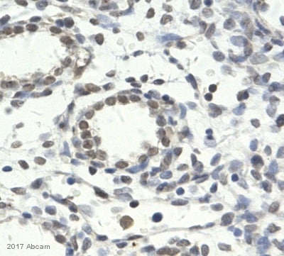Immunohistochemistry (Formalin/PFA-fixed paraffin-embedded sections) - Anti-Histone H3 (di methyl K27, tri methyl K27) antibody [mAbcam 6147] (ab6147)