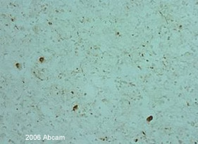 Immunohistochemistry (Frozen sections) - Anti-Alpha-synuclein antibody (ab6162)