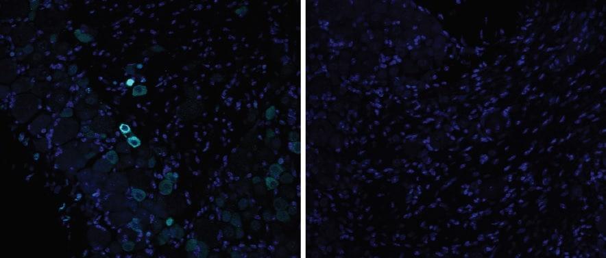 Immunohistochemistry - Free Floating - Anti-TRPV1 antibody (ab6166)