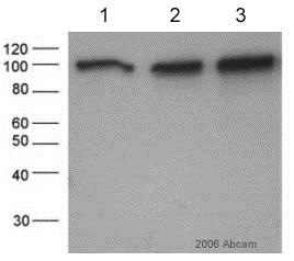 Western blot - Anti-beta Catenin antibody (ab6302)