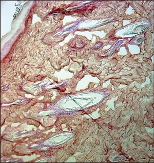 Immunohistochemistry (Formalin/PFA-fixed paraffin-embedded sections) - Anti-Collagen III antibody [FH-7A] (ab6310)