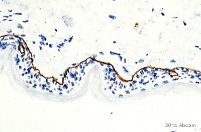 Immunohistochemistry (Formalin/PFA-fixed paraffin-embedded sections) - Anti-Collagen VII antibody [LH7.2] (ab6312)