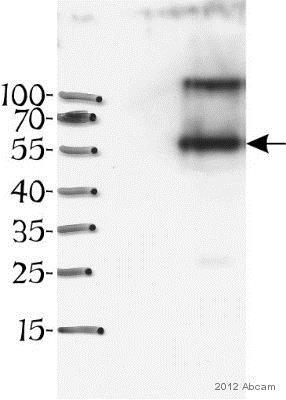 Western blot - Anti-Desmin antibody [DE-U-10] - Cytoskeleton Marker (ab6322)