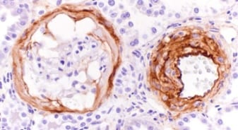 Immunohistochemistry (Formalin/PFA-fixed paraffin-embedded sections) - Anti-Fibronectin antibody [IST-9] (ab6328)