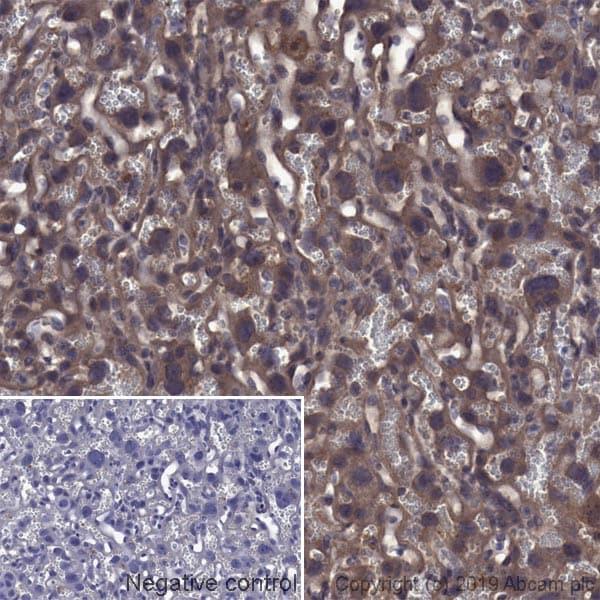 Immunohistochemistry (Formalin/PFA-fixed paraffin-embedded sections) - Anti-Transferrin Receptor antibody [OX26] (ab6331)