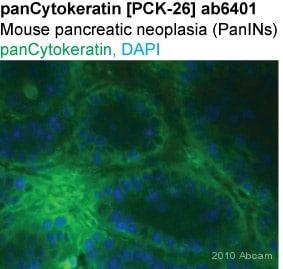 Immunohistochemistry (Frozen sections) - Anti-pan Cytokeratin antibody [PCK-26] (ab6401)