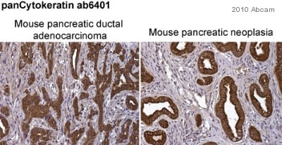 Immunohistochemistry (Formalin/PFA-fixed paraffin-embedded sections) - Anti-pan Cytokeratin antibody [PCK-26] (ab6401)