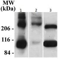 Western blot - Anti-Metabotropic Glutamate Receptor 2+3 antibody (ab6438)