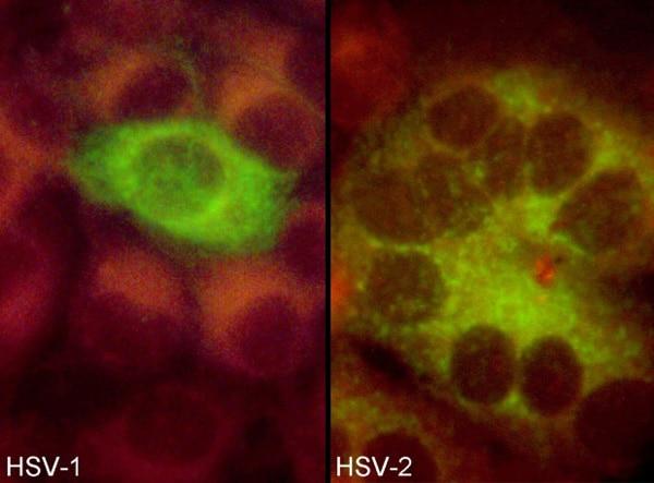 Immunocytochemistry/ Immunofluorescence - Anti-HSV1 + HSV2 gD antibody [2C10] (ab6507)