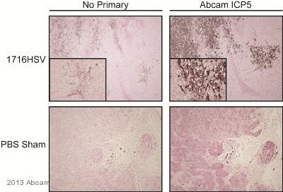 Immunohistochemistry (Formalin/PFA-fixed paraffin-embedded sections) - Anti-HSV1 + HSV2 ICP5 Major Capsid Protein antibody [3B6] (ab6508)