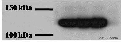 Western blot - Anti-pan Cadherin antibody (ab6529)