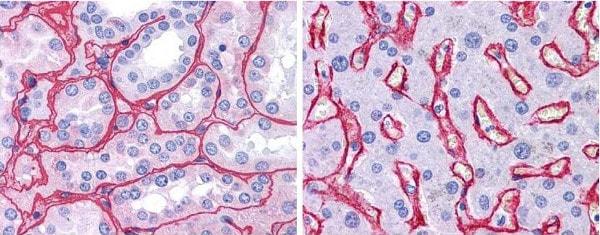 Immunohistochemistry (Formalin/PFA-fixed paraffin-embedded sections) - Biotin Anti-Collagen IV antibody (ab6581)