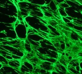 Immunocytochemistry/ Immunofluorescence - Anti-Fibronectin antibody (Biotin) (ab6584)