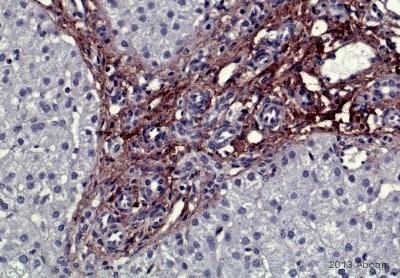 免疫组化(福尔马林/PFA固定石蜡切片)抗Ⅳ型胶原抗体(AB65)