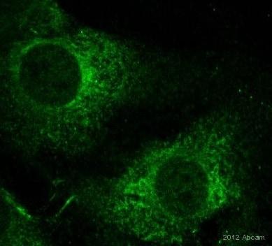 Immunocytochemistry/ Immunofluorescence - Anti-Collagen IV antibody (ab6586)