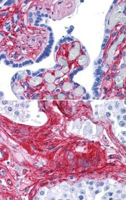 Immunohistochemistry (Formalin/PFA-fixed paraffin-embedded sections) - Anti-Collagen VI antibody (ab6588)