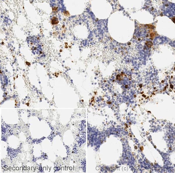Immunohistochemistry (Formalin/PFA-fixed paraffin-embedded sections) - Anti-CD62P antibody [AK-6] (ab6632)