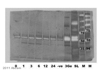 Immunoprecipitation - Anti-Phosphoserine antibody [PSR-45] (ab6639)