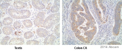 Immunohistochemistry (Formalin/PFA-fixed paraffin-embedded sections) - Anti-TNF alpha antibody (ab6671)
