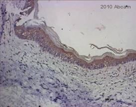 Immunohistochemistry (Formalin/PFA-fixed paraffin-embedded sections) - Rabbit Anti-Sheep IgG H&L (HRP) (ab6747)