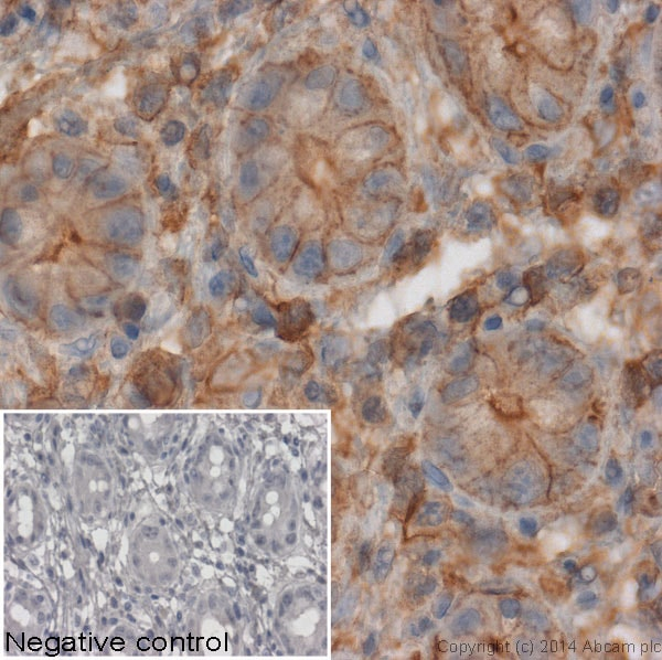 Immunohistochemistry (Formalin/PFA-fixed paraffin-embedded sections) - Donkey Anti-Mouse IgG H&L (HRP) (ab6820)