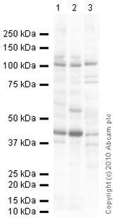 Western blot - Anti-ORP8 antibody [mAbcam 60110] (ab60110)