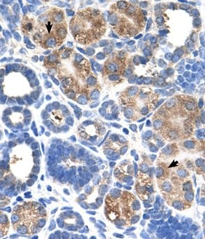 Immunohistochemistry (Formalin/PFA-fixed paraffin-embedded sections) - Anti-C5ORF4 antibody (ab60131)