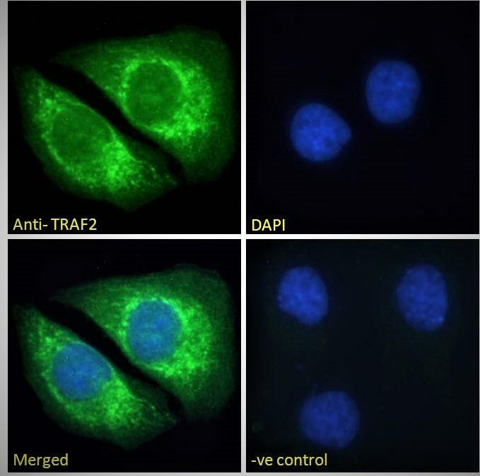 Immunocytochemistry/ Immunofluorescence - Anti-TRAF2 antibody (ab60169)
