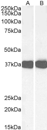 Western blot - Anti-liver Arginase antibody (ab60176)