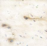 Immunohistochemistry (Formalin/PFA-fixed paraffin-embedded sections) - Anti-MARK1 antibody (ab60202)