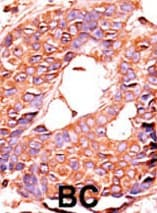 Immunohistochemistry (Formalin/PFA-fixed paraffin-embedded sections) - Anti-PPP6C antibody (ab60249)