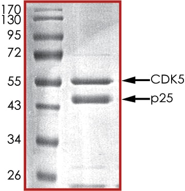 SDS-PAGE - Recombinant human CDK5 + p25 protein (ab60761)