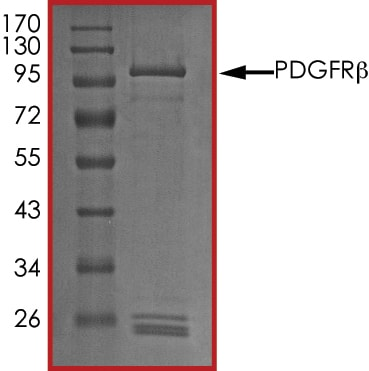 SDS-PAGE - Recombinant human PDGFR beta protein (ab60833)
