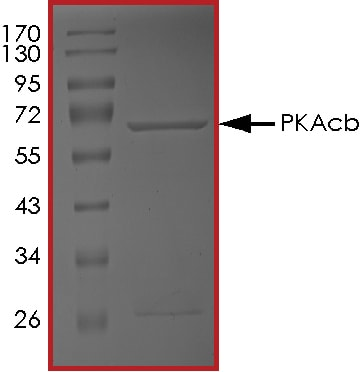 SDS-PAGE - Recombinant human PKA beta (catalytic subunit) protein (ab60837)