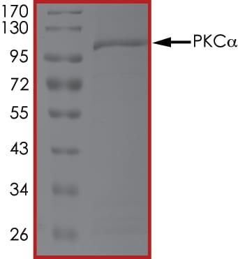 SDS-PAGE - Recombinant <em>X. laevis</em> PKC alpha protein (ab60839)